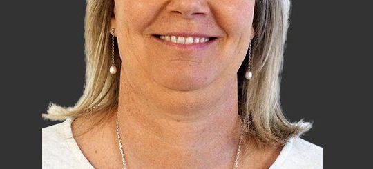 En fedtsugning hals kan få dig til at se godt ud